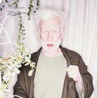 Как выглядят альбиносы разных рас